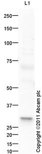 Western blot - Skin (Human) Tissue Lysate - adult normal tissue (ab30166)
