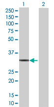 Western blot - Annexin V 293T Transfected Lysate - (positive control) (ab94073)