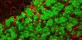 神経細胞マーカー NeuN と抗体
