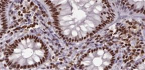 多彩な HRP/AP/Biotin 標識二次抗体