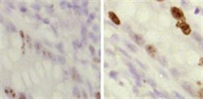 VHH Single Domain抗体