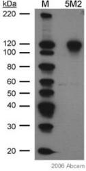 Western blot - Anti-HIF-1-alpha [H1alpha67] antibody (ab1)