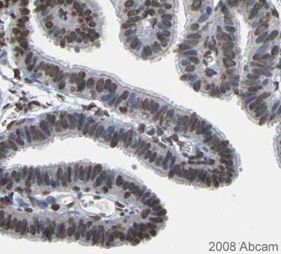 Immunohistochemistry (Formalin/PFA-fixed paraffin-embedded sections) - EMSY antibody (ab123)