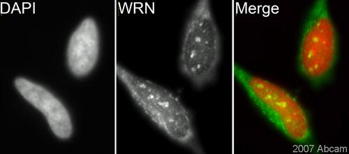 Immunocytochemistry/ Immunofluorescence - Werner's syndrome helicase WRN antibody (ab200)