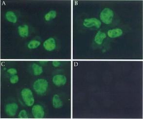 Immunocytochemistry/ Immunofluorescence - Mre11 antibody [12D7] (ab214)