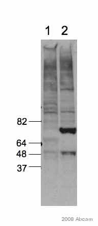 Western blot - p53 antibody [PAb 240] (ab26)