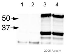 Immunoprecipitation - PCNA antibody [PC10] - Proliferation Marker (ab29)