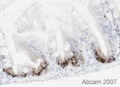 Immunohistochemistry (Frozen sections) - PCNA antibody [PC10] - Proliferation Marker (ab29)