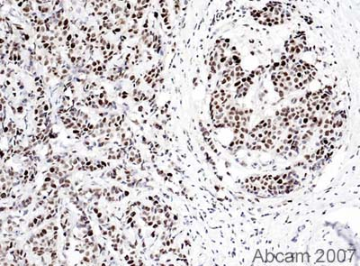 Immunohistochemistry (Formalin/PFA-fixed paraffin-embedded sections) - PCNA antibody [PC10] - Proliferation Marker (ab29)