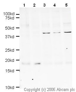Western blot - Survivin  antibody (ab469)