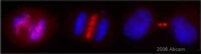 Immunocytochemistry/ Immunofluorescence - Survivin  antibody (ab469)