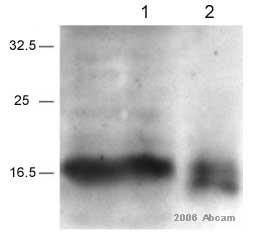 Immunoprecipitation - Survivin  antibody (ab469)