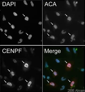 Immunocytochemistry/ Immunofluorescence - CENPF antibody (ab5)