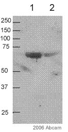 Western blot - smooth muscle Myosin heavy chain I  antibody [3F8 ] (ab682)
