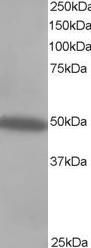 Western blot - CSK antibody (ab744)