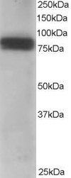 Western blot - MTA1 antibody (ab751)
