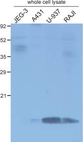 Western blot - beta 2 Microglobulin antibody [B2M-01] (ab759)