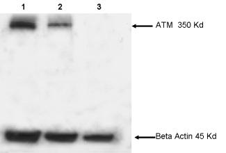 Western blot - ATM antibody [2C1 (1A1)] (ab78)