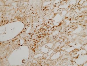 Immunohistochemistry (Frozen sections) - CD3 antibody (ab828)