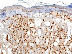 Immunohistochemistry (Formalin-fixed paraffin-embedded sections) - Ki67 antibody - Proliferation Marker (ab833)