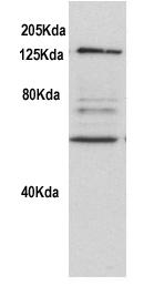 Western blot - Rad21 antibody (ab992)