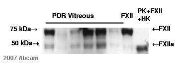Western blot - Factor XII heavy chain antibody [B7C9] (ab1007)