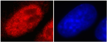 Immunocytochemistry - Histone H3 (tri methyl K4) antibody [mAbcam 1012] (ab1012)