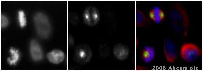 Immunocytochemistry/ Immunofluorescence - Aurora A antibody (ab1287)