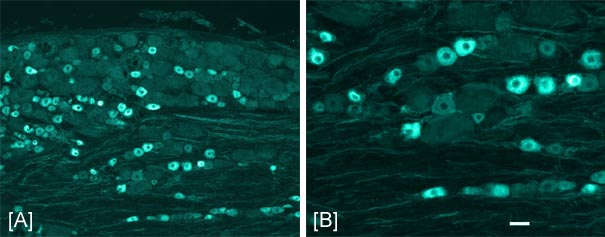 Immunohistochemistry (PFA perfusion fixed frozen sections) - nNOS (neuronal) antibody (ab1376)
