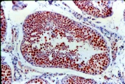 Immunohistochemistry (Formalin/PFA-fixed paraffin-embedded sections) - TIMP1 antibody [102D1] (ab1827)