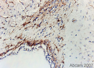 Immunohistochemistry (Formalin/PFA-fixed paraffin-embedded sections) - GFAP antibody [GF5] - Astrocyte Marker (ab10062)
