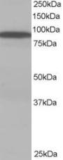Western blot - VPS35 antibody (ab10099)