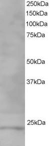 Western blot - VPS28 antibody (ab10133)