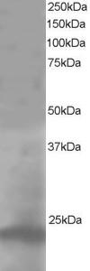 Western blot - Anti-Pallidin antibody (ab10145)