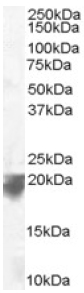 Western blot - VPS29 antibody (ab10160)