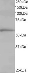 Western blot - TCP1 alpha antibody (ab10180)