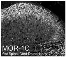 Immunohistochemistry (PFA perfusion fixed frozen sections) - Mu Opioid Receptor splice variant antibody (ab10306)