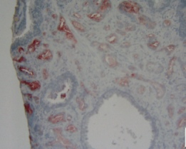 Immunohistochemistry (Formalin/PFA-fixed paraffin-embedded sections) - Anti-Apolipoprotein D antibody [8CD6] (ab10336)