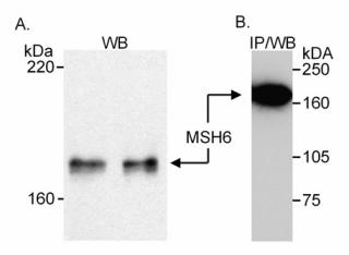 Western blot - MSH6 antibody (ab10340)