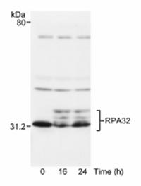 Western blot - RPA32/RPA2 antibody (ab10359)