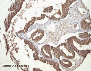 Immunohistochemistry (Formalin/PFA-fixed paraffin-embedded sections) - PGP9.5 antibody - Neuronal Marker (ab10404)