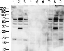 Western blot - Histone H2B (phospho S32) antibody (ab10476)