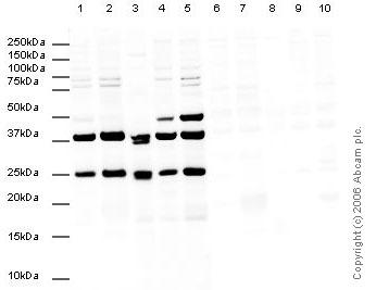 Western blot - CBX1 / HP1 beta  antibody (ab10478)