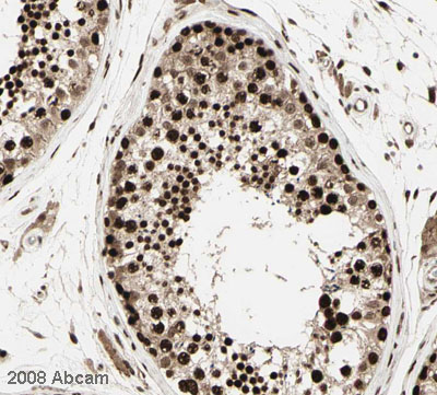 Immunohistochemistry (Formalin/PFA-fixed paraffin-embedded sections) - CBX1 / HP1 beta  antibody (ab10478)
