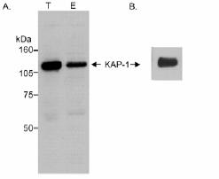 Immunoprecipitation - KAP1 antibody (ab10484)