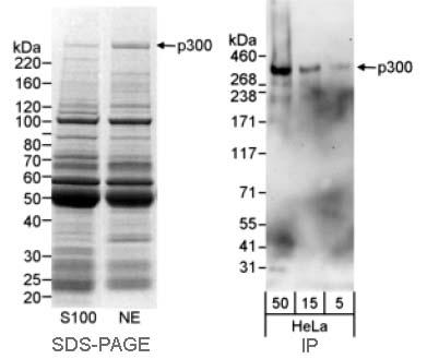 Immunoprecipitation - p300 antibody (ab10485)