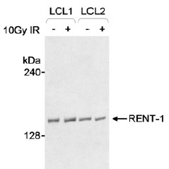 Western blot - RENT1/hUPF1 antibody (ab10510)