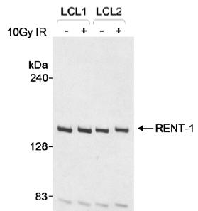 Western blot - RENT1/hUPF1 antibody (ab10534)