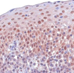 Immunohistochemistry (Formalin/PFA-fixed paraffin-embedded sections) - Anti-Skp1 antibody (ab10546)