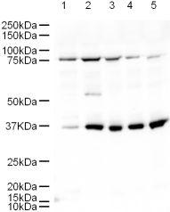Western blot - Anti-GGA2 antibody (ab10552)